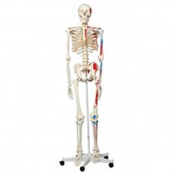 """Skelett A11 """""""