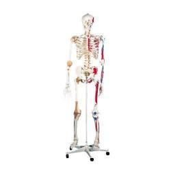 """Skelett A13 """""""